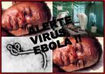 Ebola Head shots of infected man